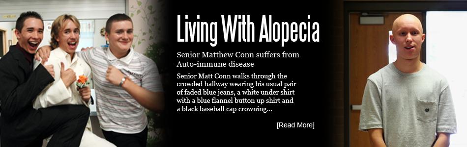 Living With Alopecia Universalis